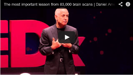 The Most Important Lesson From 83,000 Brain Scans