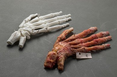 3D Printing Validated for Trauma Surgery