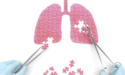 New Immunotherapy Treatment Promising for NSCLC